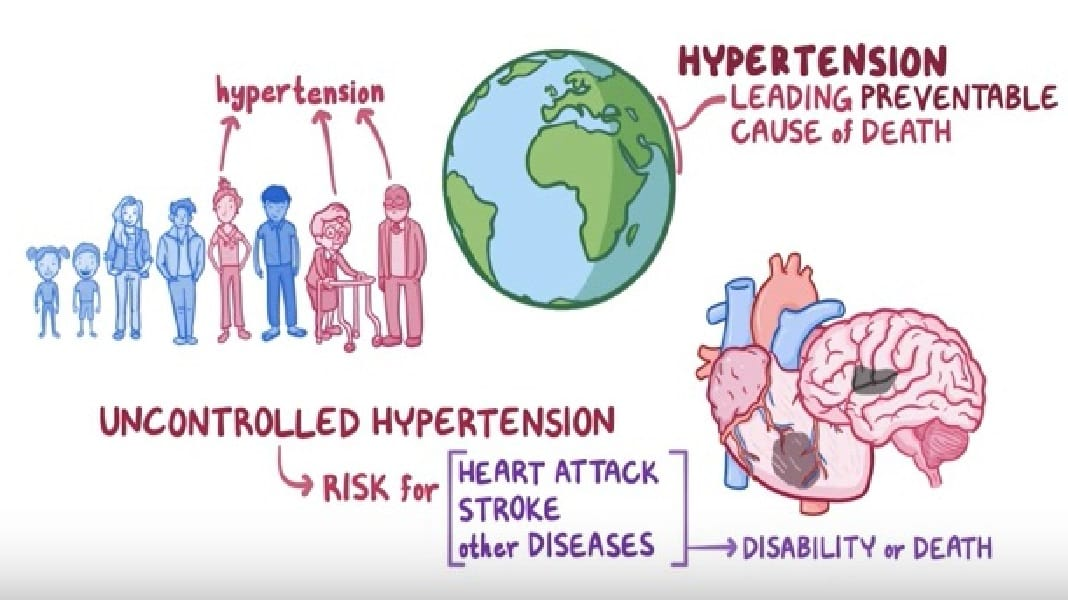 Video: Why is hypertension important